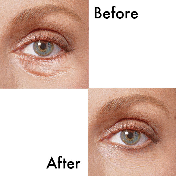 Sudden Change® Under Eye Firming Serum - View 2
